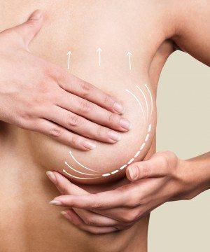 Göğüs dikleştirme ameliyatı