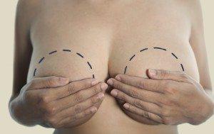 Göğüs küçültme ameliyatı